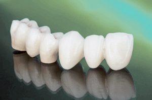 a row of prosthetic teeth