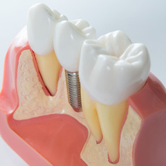 a dental implant in between two natural teeth